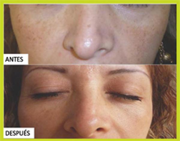 Franquicias Depelle: ¿Sabes cómo disminuir tus manchas?